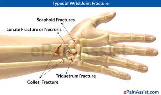 joint and wrist pain picture 14