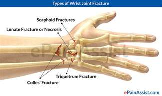 joint and wrist pain picture 2