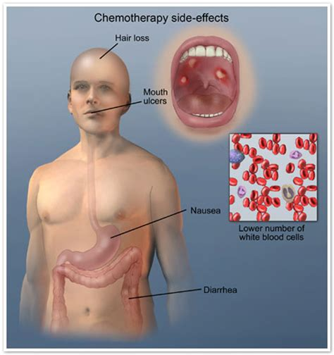 effects of chemotherapy on skin picture 10