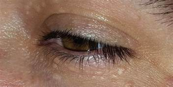 natural remedy for syringoma around the eyes picture 3