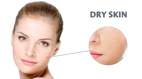 can stress dry your skin out picture 8