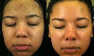 fading acne dark spots picture 5