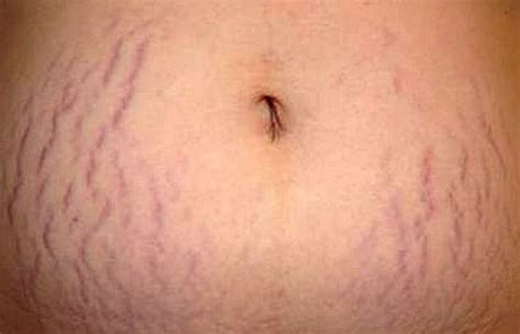 what is stretch marks picture 6