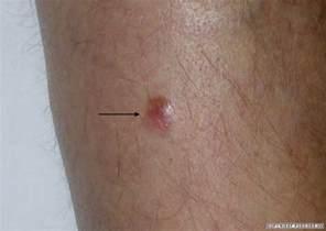 acbd diagnose skin mole picture 18