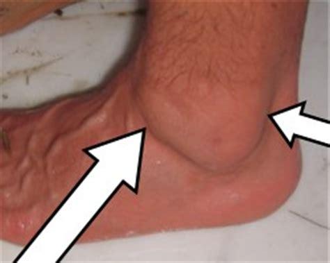 swollen lymph nodes after surgery? picture 7