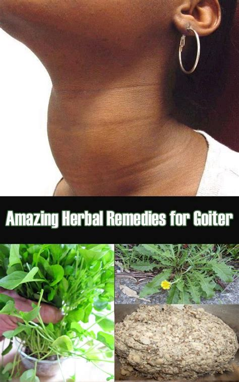 herbal medicine for goiter thyroid picture 11