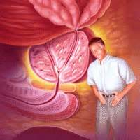 What causes prostate infections picture 13