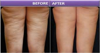 shoes to help get rid of cellulite picture 11