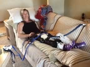 women crutches pain leg picture 11