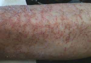 treatment of bacterial infections picture 9