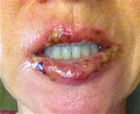 creams for lip cancer picture 7