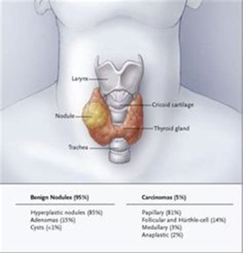 ayurvedic approach to thyroid nodules picture 15