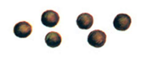 pellet type bowel movements picture 9