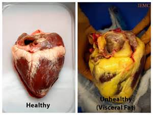 Kid cholesterol my heart picture 3