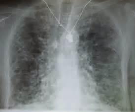 milk thistle thyroid nodule picture 13