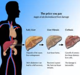 odds of developing liver problems as a heavy picture 2