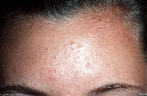 acne and candida picture 2
