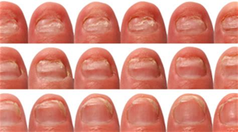stages of nail fungus picture 9