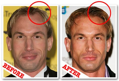 cosmetic surgery hair picture 17