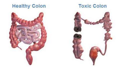 healthy monday colon cancer picture 2