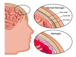 symptoms of bacterial meningitis picture 11