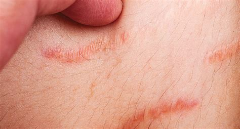 can infected stretch mark cause stomach pain picture 1