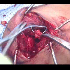ac joint surgery picture 10