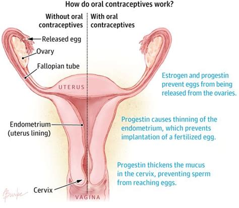 does herbex stop contraceptives from working picture 1