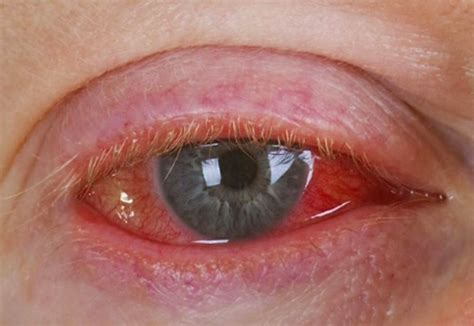 viral or bacterial conjunctivitis picture 5