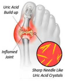 sudden joint pain picture 1