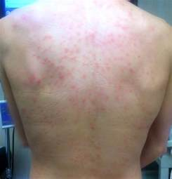 skin hives pictures picture 2