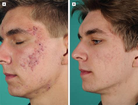 doxycycline for acne picture 11
