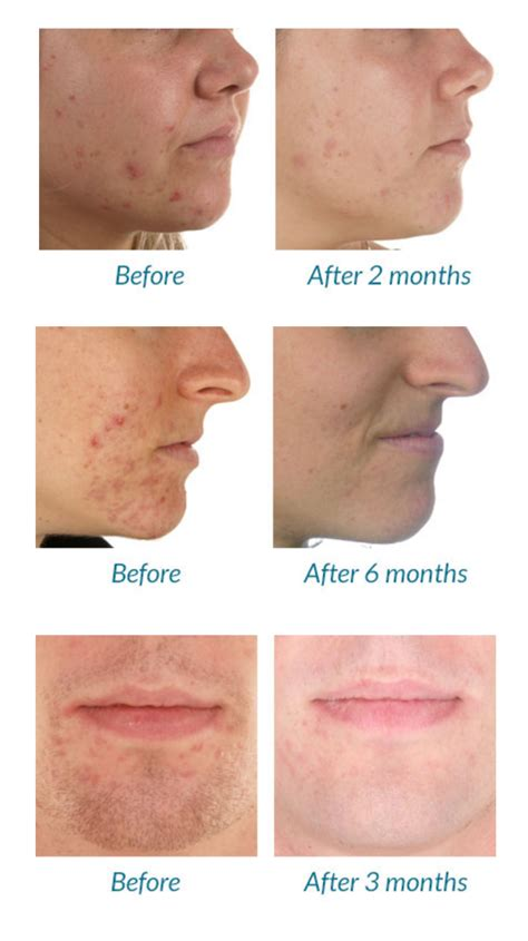 acne light therapy picture 1