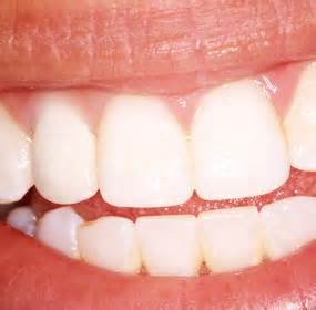 incoming search terms dental implants keywordluv picture 13