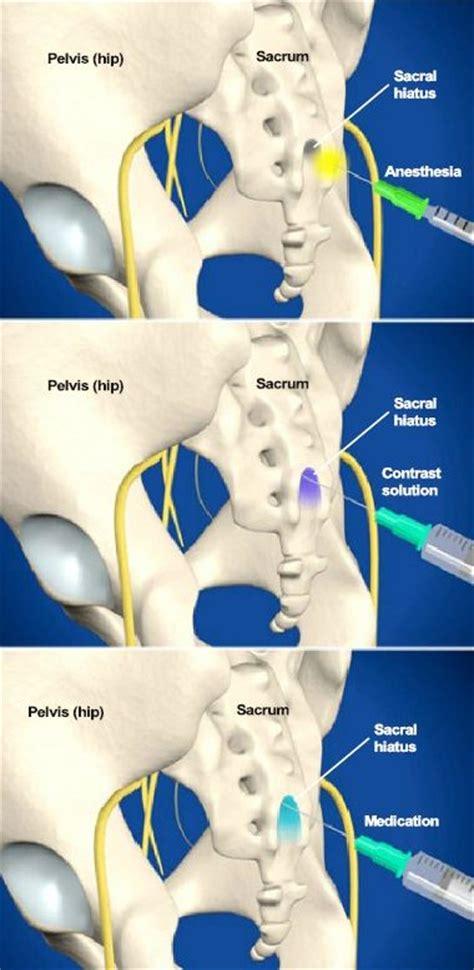 back ache leg pain picture 9