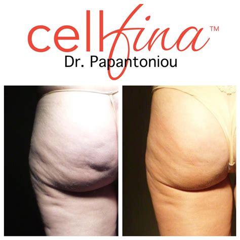 cellulite reduction treatment picture 7