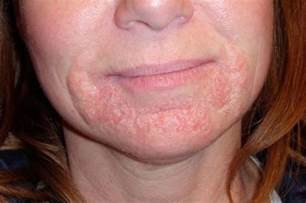 what can cause lips to swell and rash picture 9