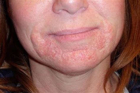 what can cause lips to swell and rash picture 6