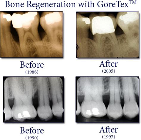 coffee and tooth bone loss picture 2