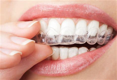 california whiten teeth picture 3
