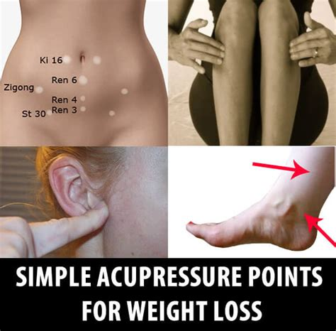 accupuncture and weight loss picture 1