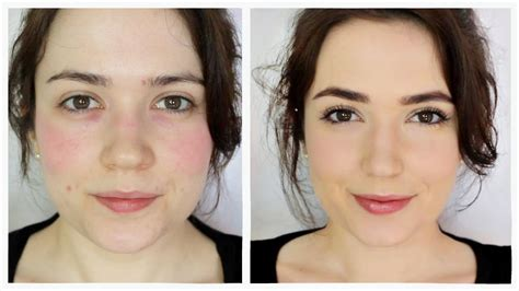 how to stop blotchy make up where there picture 5