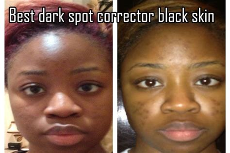 best skin care for african americans picture 3