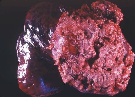 angiosarcoma of the liver picture 10