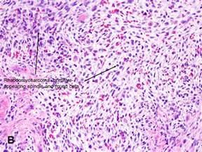 rhabdomyosarcoma of the bladder picture 10