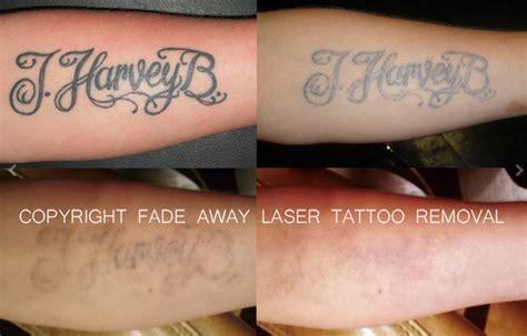 laser hair removal denver picture 9