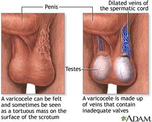 sex cure spermatocele picture 13
