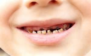 decayed teeth and bad breath picture 9