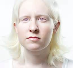 skin coloration genetic disorder picture 1