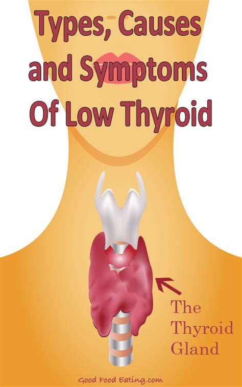 low thyroid symptoms picture 10